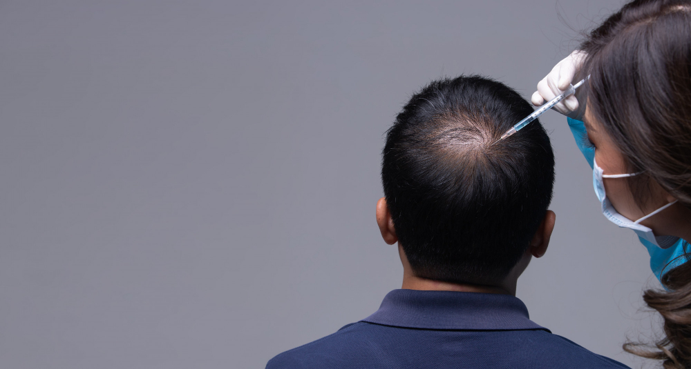 Why Choosing Istanbul For Hair Transplant Surgery