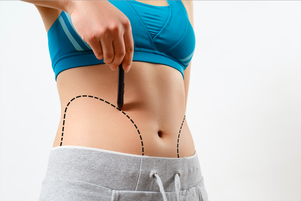 Obesity Surgery in Istanbul