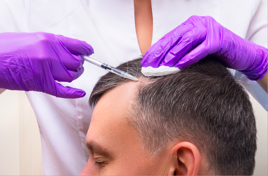 Hair Transplant in Istanbul Is Advanced