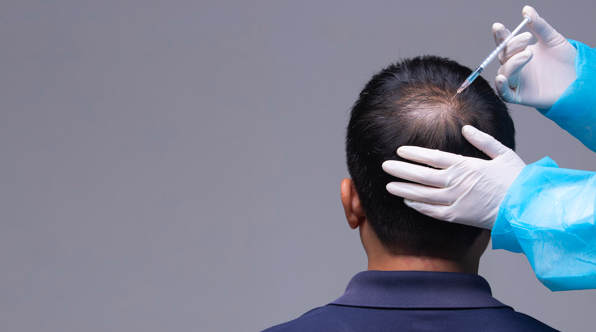 When is The Best Time For Hair Transplant in Istanbul?