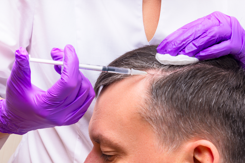 Recovery of Hair Transplant