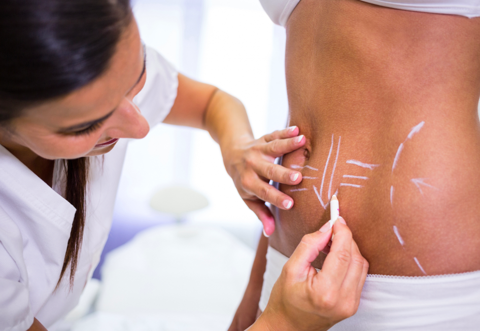 Liposuction Surgery in Istanbul